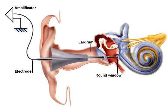 Denoc Hearing Electrococheleography(ECOG or ECochG)  Denoc Hearing Electrococheleography(ECOG or ECochG)