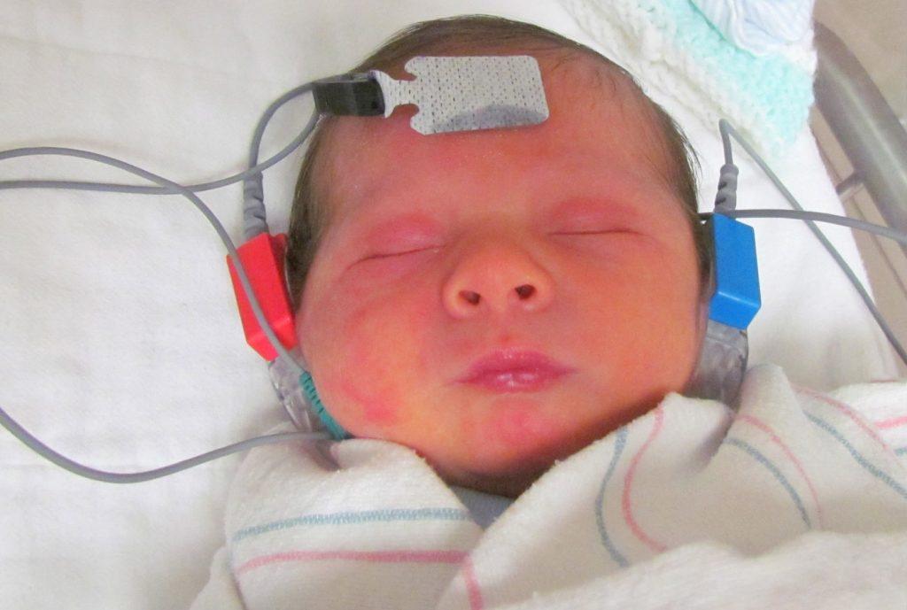 Denoc Hearing Auditory Brain Stem Response  Denoc Hearing Auditory Brain Stem Response  Denoc Hearing Auditory Brain Stem Response